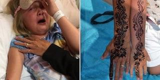 Bimba ustionata per un tatuaggio all'henné: avrà cicatrici per il resto della vita