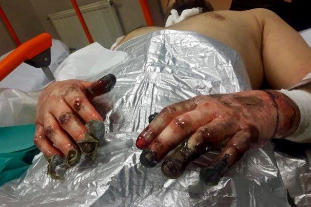 Le mani semi carbonizzate di Luca, un vigile del Fuoco rimasto ferito in servizio
