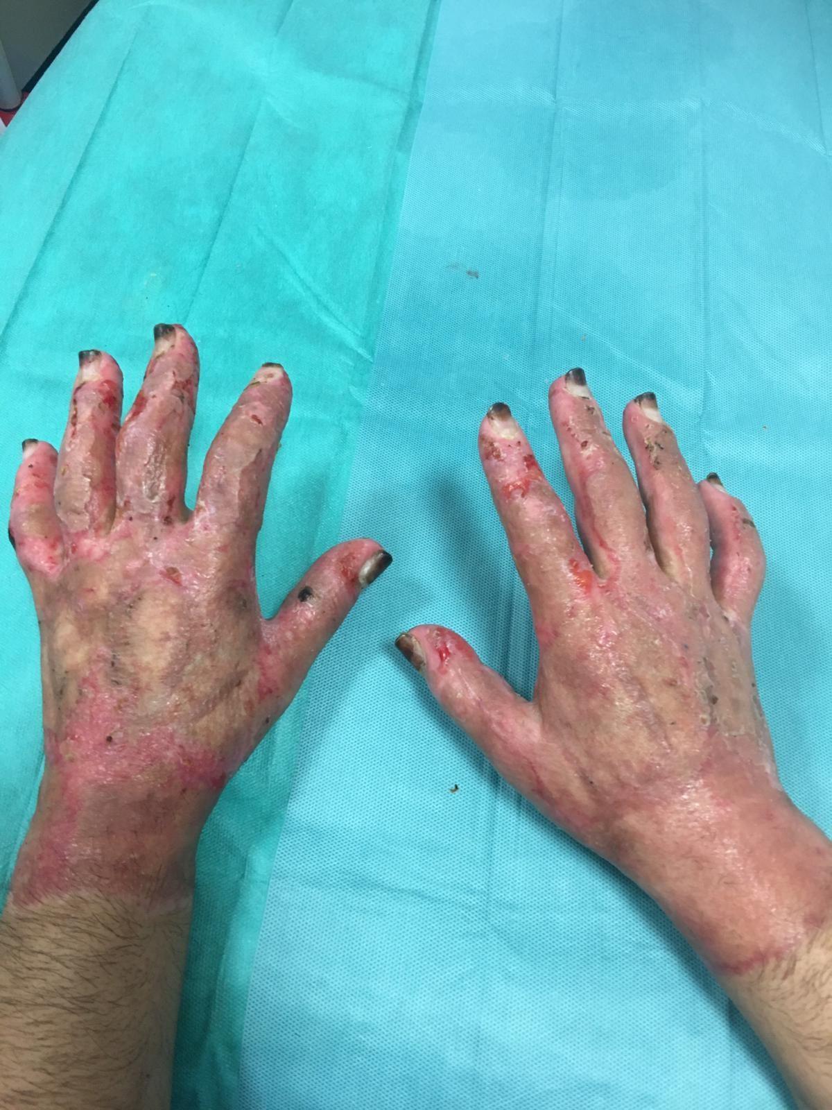 Le mani di Luca dopo quasi due mesi dall'esplosione che lo ha colpito in pieno