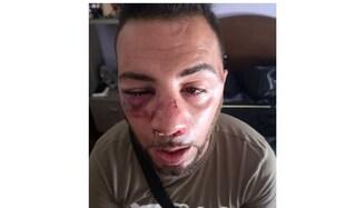 Ragazzo di Bagheria picchiato a Etnalab per un paio di ciabatte: fratture a naso e zigomo
