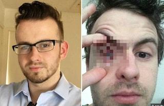 Fa la doccia con le lenti a contatto: contrae rara infezione parassitaria e perde l'occhio