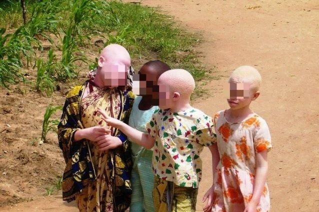Bambini albini in Mozambico (Albimoz)