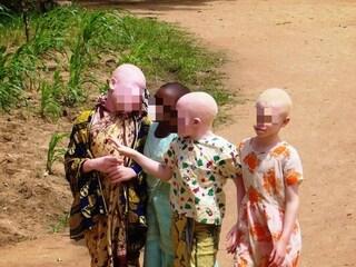 Mozambico, non si ferma la violenza contro gli albini: due bimbi fatti a pezzi