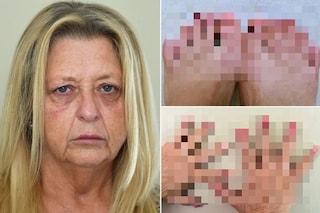 """Donna perde tutte le unghie dei mani e dei piedi: """"È un mistero, nessuno sa che malattia ho"""""""
