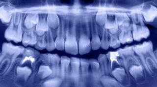 India. Dentisti estraggono 500 denti dalla bocca di un bambino di 7 anni