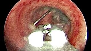 Torino, a 13 anni ingoia uno spillo da 3,5 centimetri che si incastra nei bronchi: salvata