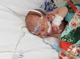 Neonata ha 320 pulsazioni al minuto: i medici la salvano immergendola nell'acqua ghiacciata