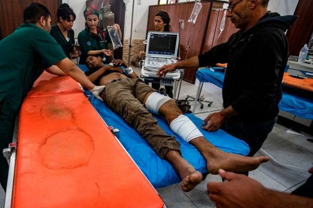 Un ferito nell'ospedale di Tal Tamer, nel nord–est della Siria (Gettyimages)