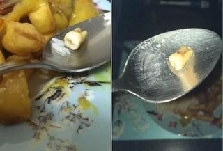 """Comprano cibo cinese d'asporto, a casa la disgustosa scoperta: """"Nel maiale c'era un dente umano"""""""
