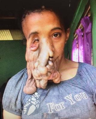 """Australia, operata donna con enormi masse tumorali sul viso: """"Finalmente non mi devo più nascondere"""""""