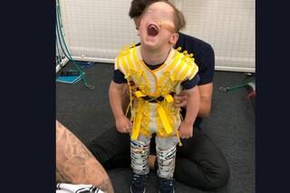 """Affetto da paralisi cerebrale, bimbo di 4 anni cammina per la prima volta: """"È un miracolo"""""""