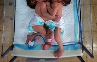 Per i medici in Sierra Leone non ci sono speranze, gemelle siamesi verranno separate a Padova