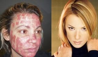 """Ex modella sfigurata dal chirurgo estetico, risarcita dopo 40 interventi: """"Ora sono più forte"""""""