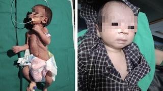 Sepolta viva in una pentola, neonata salvata da un pastore che seppelliva la figlia morta