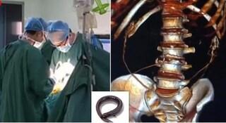"""Cina. Non riesce a defecare, ingoia due anguille vive """"per guarire"""": intestino lacerato"""