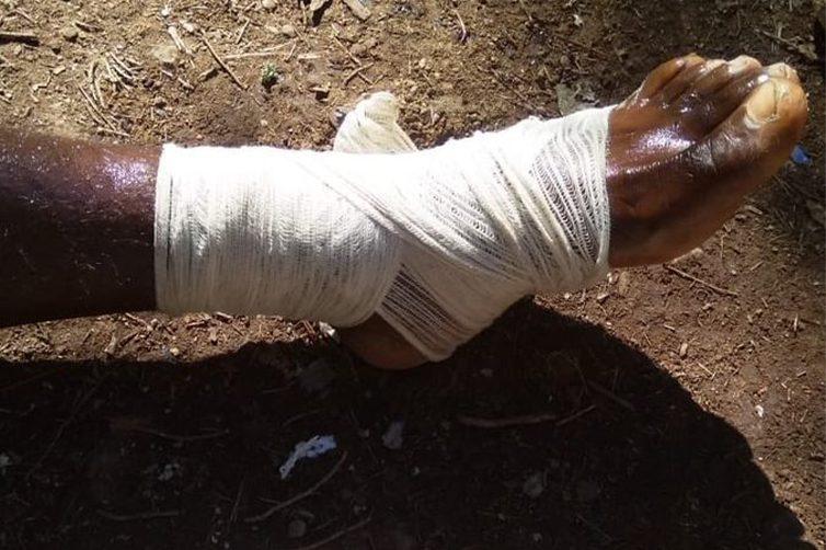 Il piede ferito di uno dei migranti che il 12 gennaio ha cercato di attraversare la frontiera tra Marocco e Spagna (Alarmphone)