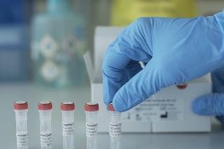 Coronavirus, secondo caso in provincia di Cremona: è residente a Pizzighettone