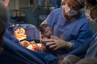 """È appena nata ma è già """"arrabbiata"""": la foto della neonata diventa virale su Facebook"""