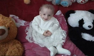 Morta a 8 anni Anna Sakidon, era la bambina più giovane affetta da progeria
