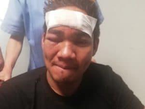 Chi è il filippino picchiato su un bus e accusato di trasmettere coronavirus: in Italia da 23 anni