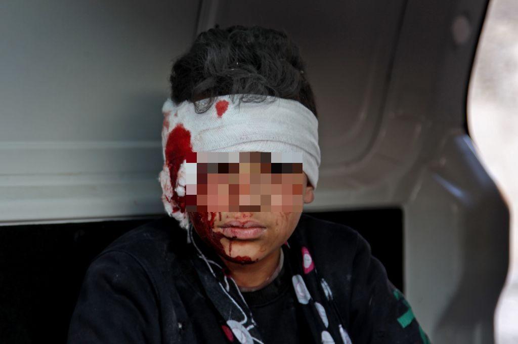 Uno dei bambini feriti ieri nel bombardamento a Ma'arrat Misrin (Gettyimages)