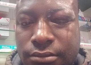 """Il coraggio di Ousman, picchiato mentre blocca il rapinatore di una farmacia: """"Gesto bellissimo"""""""
