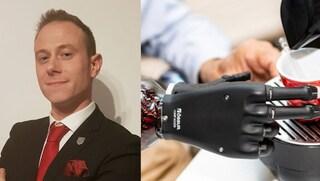 Protesi bionica per sostituire l'arto perso in incidente, Marco ha una nuova mano
