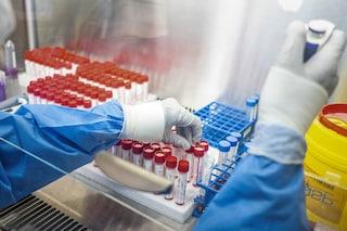 Tamponi covid abusivi, reagenti scaduti e positivi non segnalati: Nas denunciano decine di centri analisi