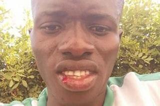 """Mamady, vittima di un pestaggio razzista in spiaggia, denuncia gli aggressori: """"Ci sono testimoni"""""""