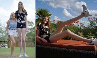 Maci, 17 anni, è la ragazza più alta del mondo: solo le gambe misurano 135 centimetri