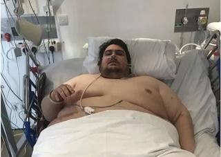 """Jason ha deciso di curarsi dall'obesità: """"I pompieri mi hanno tirato fuori di casa con una gru"""""""