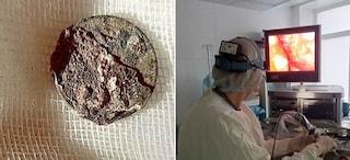 """""""Non respiro bene"""", medici gli rimuovono moneta che si era infilato nel naso da bimbo 50 anni prima"""