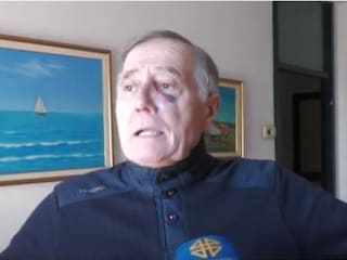 """Nonno picchiato da due ragazzi di 15 e 16 anni: """"Gli avevo solo detto di mettere la mascherina"""""""
