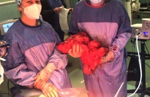 Lecce, le asportano tumore da 10 kg ma senza trasfusione: paziente è testimone di Geova
