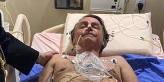 Bolsonaro ricoverato per ostruzione intestinale: conseguenze della coltellata ma non sarà operato