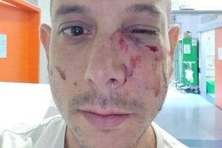 Pisa, aggressione ai danni di un turista israeliano