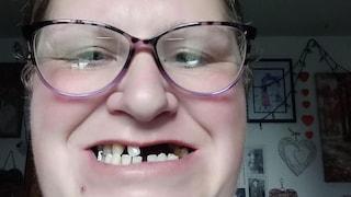 """Non riesce a prenotare visita dal dentista: si strappa 11 denti da sola. """"Non potevo permetterne uno privato"""""""