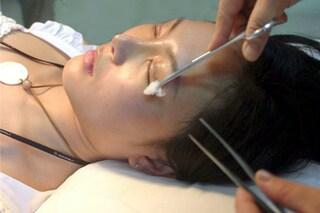 Naso, palpebre e seno saranno i ritocchi più richiesti del 2015