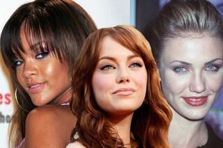 Anche le celebrities hanno l'acne: ecco i loro volti imperfetti (FOTO)