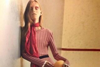 Una modella anoressica in copertina, è polemica sul web