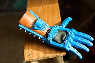 "Nasce senza dita, ora ha una mano bionica ispirata a ""Star Wars"""