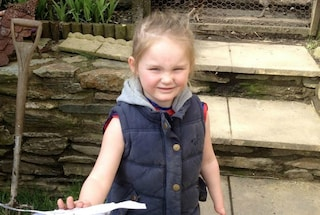Ha 4 anni ed è nata senza dita: grazie alla protesi riesce a spazzolare le bambole