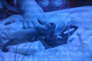 Dà alla luce un bimbo prematuro a causa di un'infezione vaginale