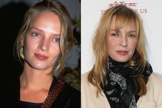 Le celebrities e il ritocchino: tutte le vittime del botulino (FOTO)