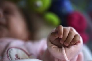 La bimba di plastica: una rara malattia la fa sembrare una bambola