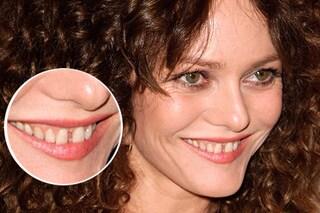 Denti gialli, inclinazioni e diastemi: ecco i sorrisi imperfetti delle star (FOTO)