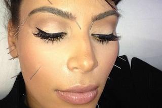 L'agopuntura che combatte le rughe per un viso giovane e tonico