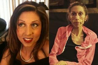 Troppo magra per essere curata: Rachel, l'attrice anoressica che pesa 18 kg (VIDEO)