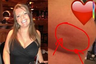 Scopre di avere il cancro e mostra i segni che ha sul seno su Facebook