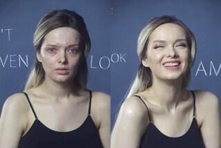 """Viene offesa per l'acne, poi lo copre col trucco: """"Sfido gli ideali di bellezza"""" (VIDEO)"""